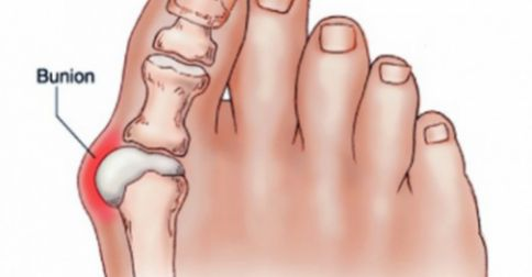 Η ΔΙΑΔΡΟΜΗ ®: Απαλλαγείτε από τους κάλους στα πόδια