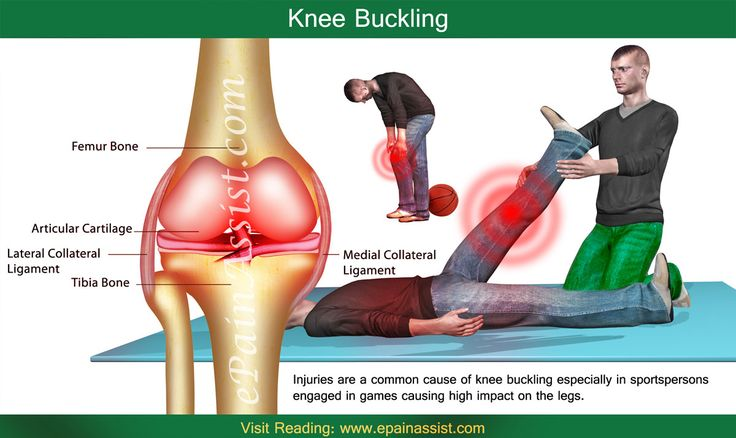 Knee buckling can be considered as a protective response of the knee and its surrounding tissues to prevent further damage. Know its causes, treatment, exercise to prevent buckling of knee or knee giving way.
