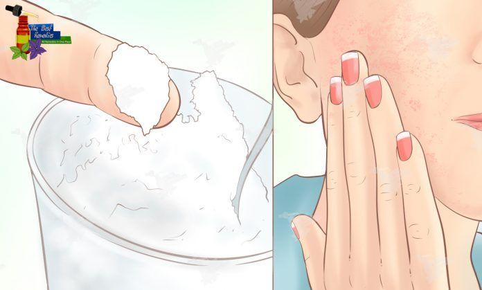 Umyte si tvár s týmto zázrakom 3 krát týždenne. A čo sa stane za mesiac? Pri pravidelnom používaní tejto masky bude vaša pokožka čistá, jemná a bezchybná   MegaZdravie.sk