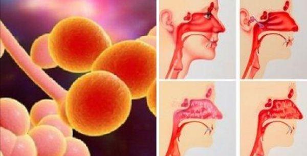 Soffri spesso di sinusite? La causa è nel tuo intestino, ecco il rimedio definitivo - http://www.sostenitori.info/naso-tappato-sinusite-cronica-la-causa-nel-intestino-rimedio-definitivo/237291
