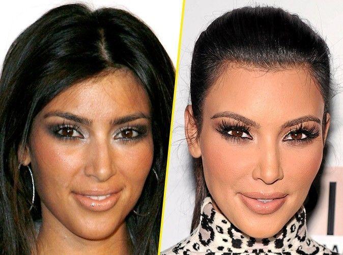Kim Kardashian avant et après Chirurgie esthétique.