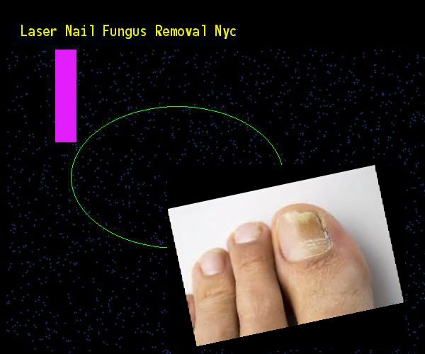 Laser nail fungus removal nyc - Nail Fungus Remedy. You have nothing to lose! Visit Site Now #nailfungusremedies