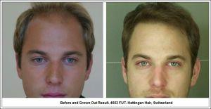 4553 FUT Hair Transplant Result