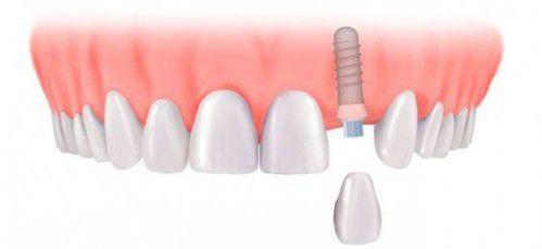 Sau khi cấy ghép implant thì việc giữ gìn răng là vô cùng quan trọng đây cũng là việc làm cần thiết và rất quan trọng sau khi cấy ghép răng