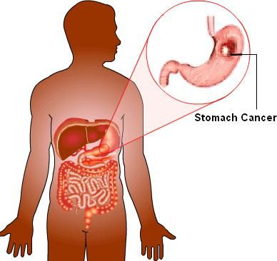Treatment for Stomach Cancer, Stomach Cancer Hospital, Stomach Cancer Treatment, stomach cancer treatment in india