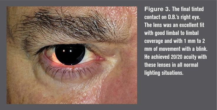 http://optometrytimes.modernmedicine.com/optometrytimes/news/relieve-migraines-tinted-contact-lenses?page=0,2Relieve migraines with tinted contact lenses   OptometryTimes