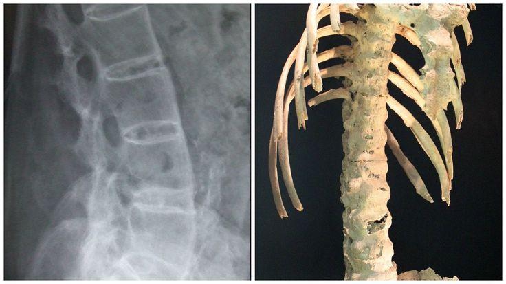 """La espondilitis anquilosante es un tipo de artritis que afecta principalmente a la espina dorsal. Anquilosante quiere decir """"rígido"""" y espondilitis significa que la espina (espondil) está inflamada (-itis). La espondilitis anquilosante es una enfermedad en la que las articulaciones y ligamentos que permiten a la espina dorsal realizar los movimientos que normalmente realiza se inflaman. http://saludespalda.com/espondilitis-anquilosante/"""