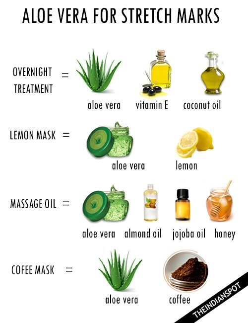 Stretch marks can be embarrassing and painful at times. The sooner you start at treating them, the easier it is to get rid of them. Stretch marks are mainly found in the abdominal wall, but can also occur over the thighs, upper arms, buttocks and breasts. Aloe Vera is a well known plant that has …