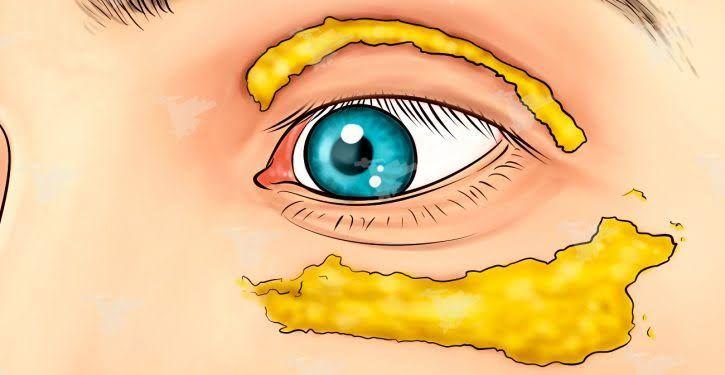 Cette femme a appliqué du curcuma autour de ses yeux et 10 minutes plus tard, les résultats étaient incroyables !...