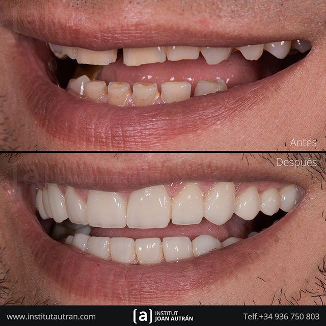 Comenzamos La Semana Devolviendo Una Sonrisa Natural Con El Tratamiento De Carillas Dentales Sin Tallado T Carillas Dentales Estetica Dental Diseños De Sonrisa
