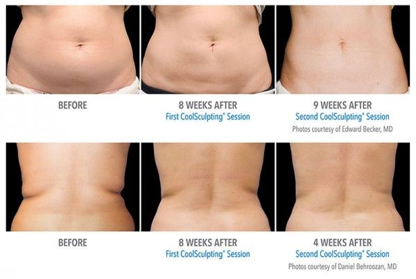 L M F: Kill Fat Cells Instantly Just by Freezing Them, See How it Works