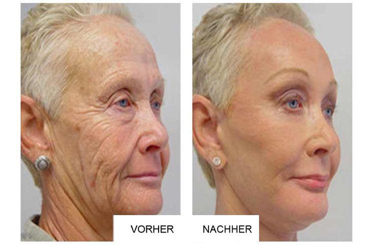 Oma überrascht die Deutschland mit Ihrer neuartigen Anti-Aging Methode: Erstaunliche Resultate bereits nach 14 Tagen!