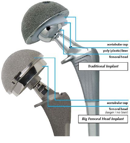 There are a large number of hip implant devices on the market. Each manufacturer has different models but each style falls into one of four basic material categories: metal on plastic (polyethylene or UHMWPE) metal on metal (MoM) ceramic on plastic (UHMWPE) ceramic on ceramic (CoC) These category names reference the materials used for the […]