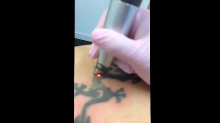 Pin by novella beauty clinic on laser tattoo removal