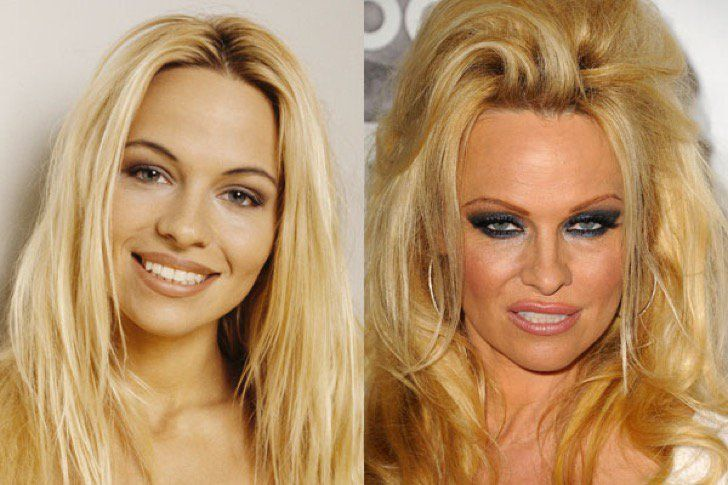PAMELA ANDERSON   12 Celebs Who Are Unrecognizable After Plastic Surgery - BuzzAura