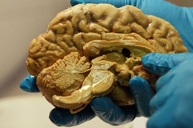 Tamas Freund holds a human brain at the Institute of Experimental Medicine of Hungarian Academy of Science in Budapest March 16, 2011. Freund, one of the three Hungarian scientists who received Europe's top prize for brain research, hopes his findings will once help cure brain diseases such as epilepsy, anxiety, depression or schizophrenia, some of which are considered to be plagues of our information age.The Grete Lundbeck European Brain Research Prize -- or The Brain Prize -- is awarded…
