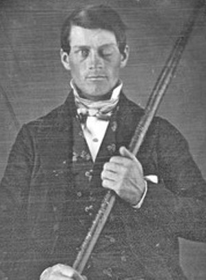 Perhaps one of the most famous medical miracle stories told to students of neurology is that of Phineas Gage.  In 1848, Gage was the foreman of a construction gang preparing the bed of a new railroad line, when an explosion forced a 3 feet 7 inch long rod through his head.  The rod entered through the man's cheek and exited through the top of his head.    Miraculously, the rod was successfully removed by doctors, and Gage survived...