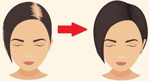 Pour arrêter de perdre vos cheveux, les fortifier et accélérer leur croissance, un seul ingrédient :