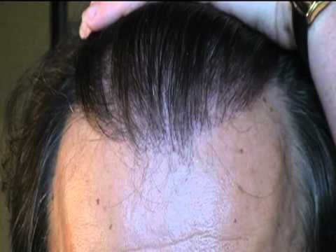 What Can 3-4000 Grafts Give You From A #HairTransplant?