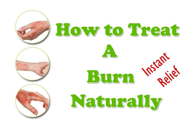 Burn Treatment  - How to Treat A Burn Naturally - Best Home Remedies for...