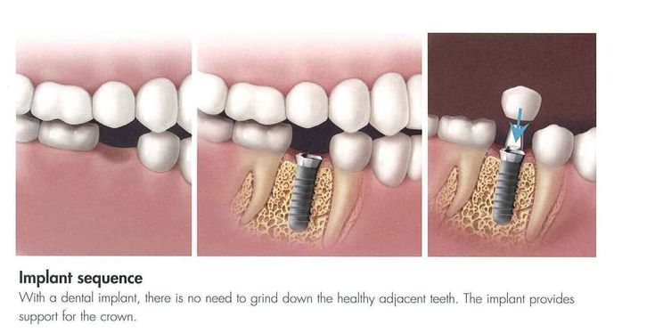 Low Cost Dental Implants  The perfect smile will be the key acquire success.This statement to an extent is true. After all the first impression designed by you may be the last perception. If you are conscious concerning your oral health then experience landed at the right place. Health and good set in the teeth are far too important on your oral nicely being. It always feels great discover people smile confidently. Saying this clearly indicates importance of selecting the right reliable…