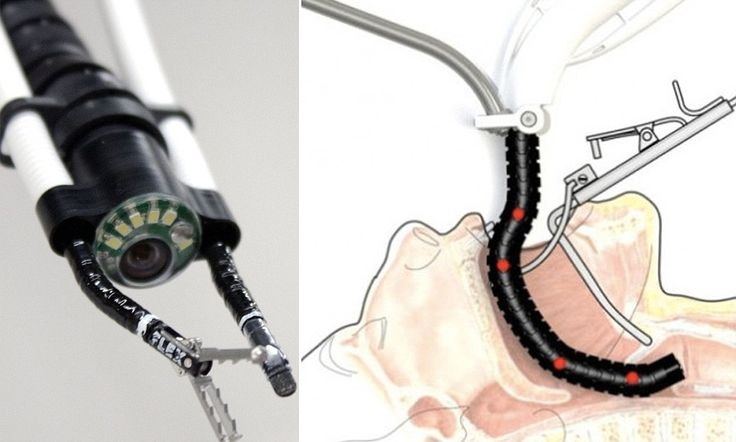 Would you let this terrifying 'snakebot' slide down your THROAT? First surgery completed using radical instrument