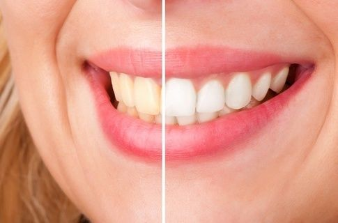 Noor Ullah Jan's answer to How do you put on 3-D Crest White strips? - Quora