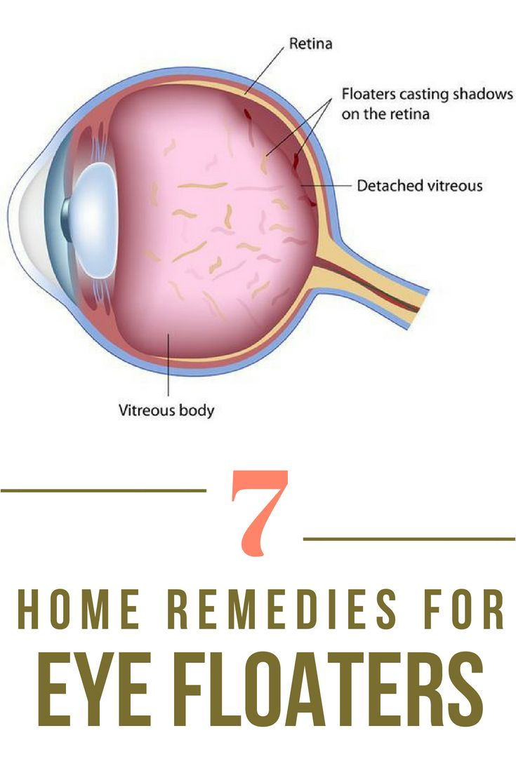 How You Can Get Rid Of Eye Floaters Eye Floaters Cure Healthy Eyes Dry Eyes Causes