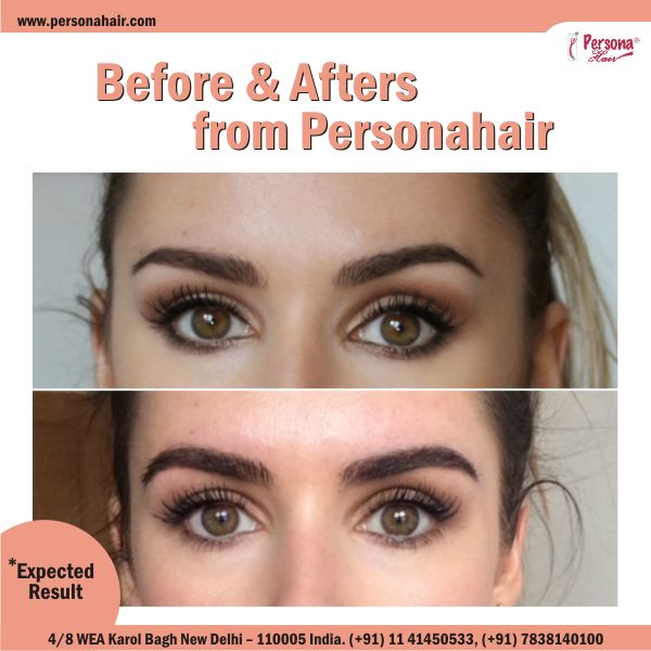At #PersonaHair, we use proven hair transplantation techniques to solve permanent hair loss in the brow area.Call @7838140100 to book your appointment. Or read more about eyebrow hair transplant surgery