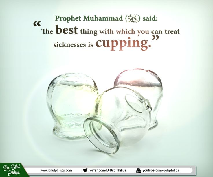 "MEDICINE: HIJAAMAH (CUPPING) Samurah said that Prophet Muhammad (PBUH) said: ""The best thing with which you can treat sicknesses is cupping."" Collected by Ahmad, al-Haakim and at-Tabaraanee Hijaamah (cupping) is the Arab method of blood-letting. The skin is pierced, either by needles or a sharp instrument, and a cup is placed over the pierced area. The air in the cup is then extracted by sucking it out through a hole in the cup, which is then sealed. The vacuum causes blood to flow out."