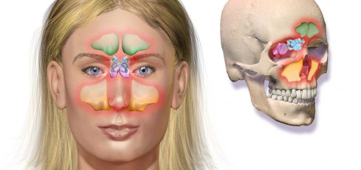 Treatment For Sinus Inflammation