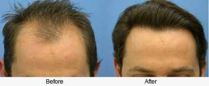 Dr. Rahul Goyal offering best hair transplant surgery with best surgeon team in India to provide that treatment at affordable cost for the patients who lives in Chandigarh. http://www.chandigarhhairtransplantation.com/hair-loss-treatment-men.php