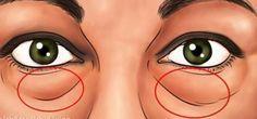Voici les meilleurs traitements naturels pour enlever les cernes et poches sous les yeux
