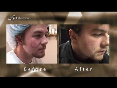 Laser treatments for acne at Aesthetic Medicine by Dr. Darm.