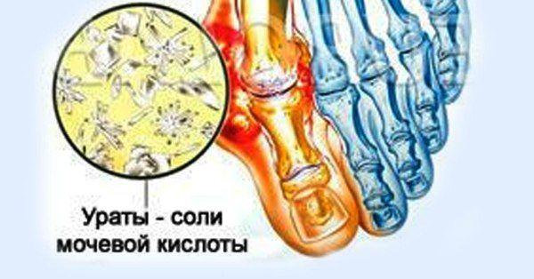 Когда в организме присутствуют высокие уровни пуринов, мочевая кислота начинает накапливаться в суставах, что способствует образованию кристаллов мочевой кислоты, которые способствуют развитию артри…