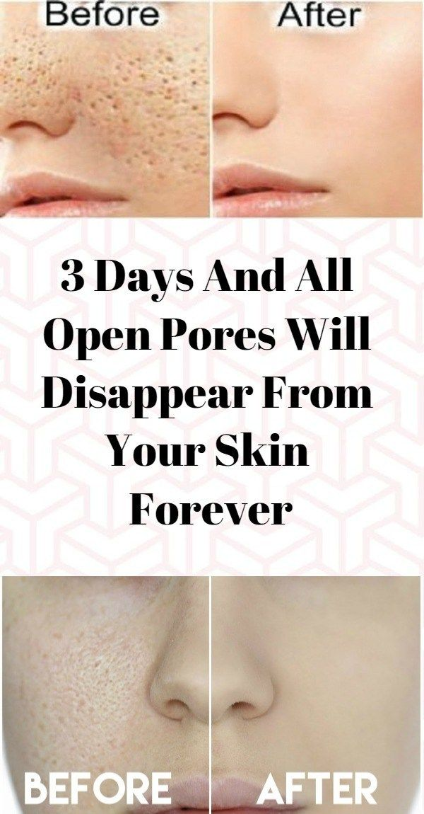 Below is a 3-step methods for 3 days and will improve the look of your skin! Step 1: Apple Cider Vinegar Skin Toner Ingredients: • 5 tablespoons organic apple cider vinegar • 2 cups of water How to…