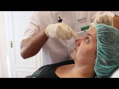 Botox para reducción de arrugas. Tratamiento con Toxina Botulínica en Clínica Esbeltic Model - http://solucionparaelacne.org/blog/botox-para-reduccion-de-arrugas-tratamiento-con-toxina-botulinica-en-clinica-esbeltic-model/