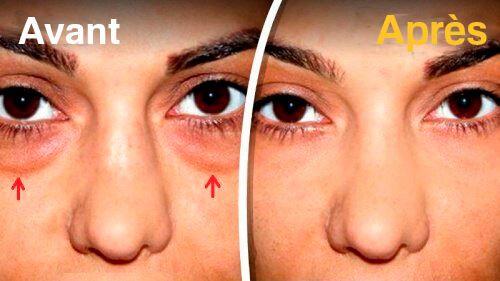 Les 5 meilleurs remèdes pour atténuer les poches sous les yeux