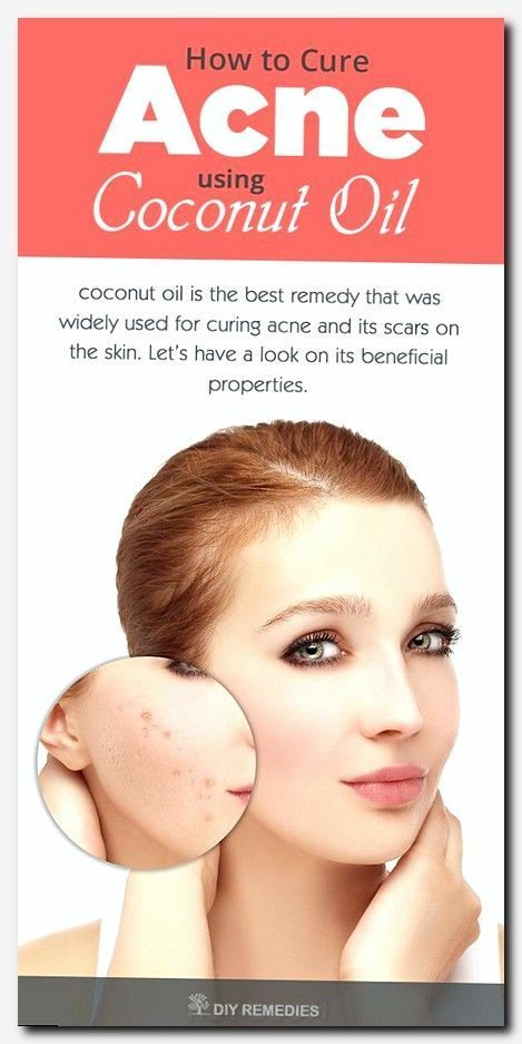 #skincare #skin #care best nail salon, what causes dry patches on face, laser skin clinic, chronic dry skin, how to glow your face in hindi, how to naturally get rid of acne, how to remove acne, get rid of a pimple, teenage acne treatment tips, makeup hair salon, best foods to eat for skin, korean beauty secrets clear skin, care of face in hindi, medspar, sodium hyaluronate tablets, common dermatologic problems