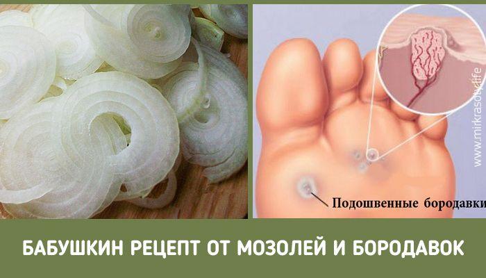 Одним из самых популярных способов избавления от бородавок (а также грибковых заболеваний) является лук. Узнайте, как правильно его применять…