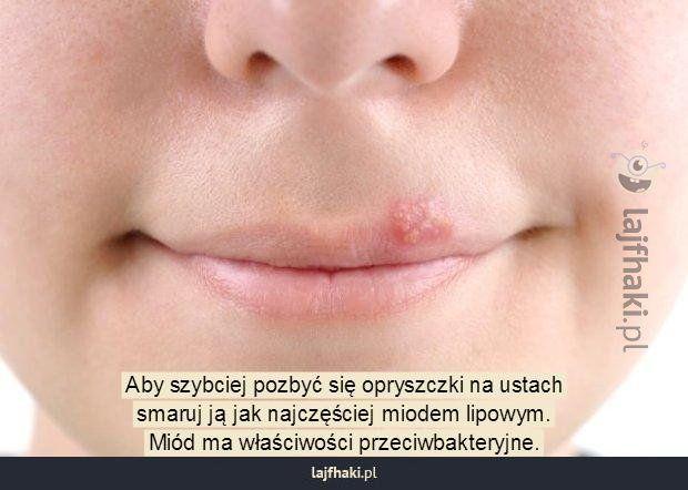Jak poradzić sobie z opryszczką domowym sposobem? - Aby szybciej pozbyć się opryszczki na ustach smaruj ją jak najczęściej miodem lipowym. Miód ma właściwości przeciwbakteryjne.