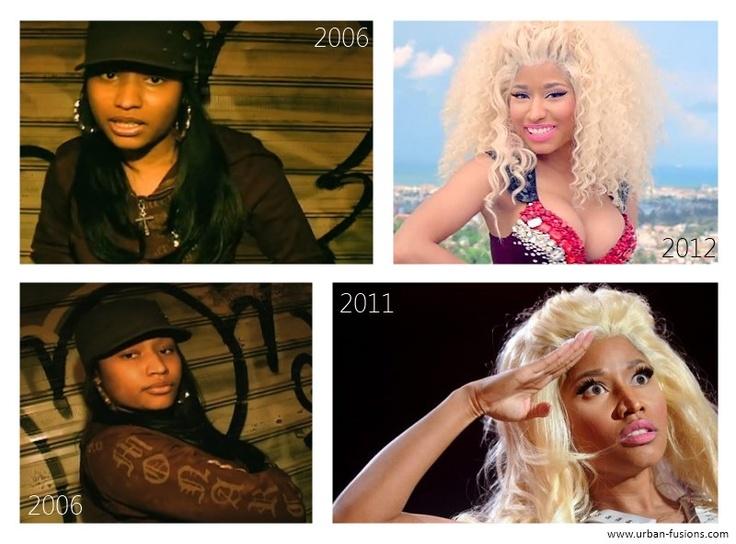 Nicki Minaj : avant / après la chirurgie esthétique - Oh my..