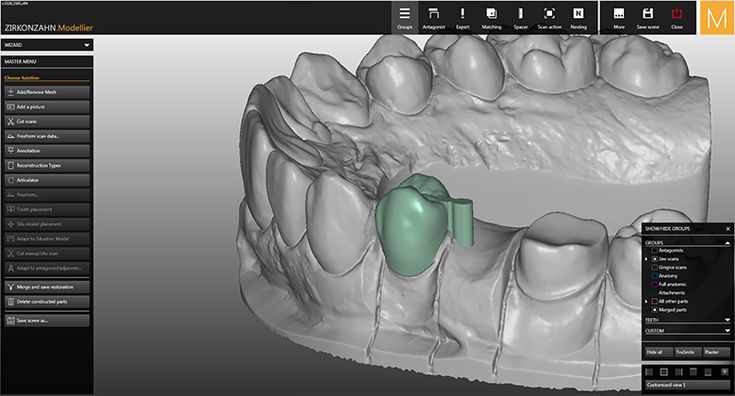 Software-Module CAD/CAM Attachments