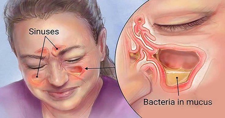 Очень простое средство! Если вы почувствовали первые признаки простуды или гайморита, то достаточно выпить всего 1 стакан! Проверено! Синусит в наши дни чрезвычайно распространен.Люди с аллергией, астмой, структурными блокировками в носу или синусах, и люди со слабым иммунитетом более склонны к этому. Синусит на самом деле является воспалением ткани, выстилающей пазухи. Проявляйте заботу о себе, …