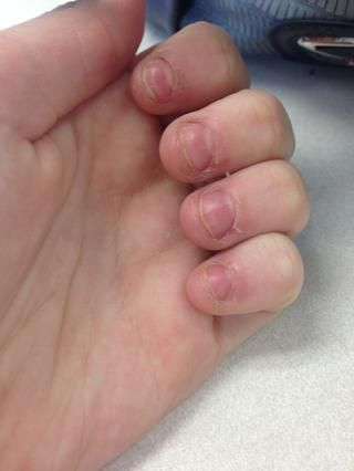 How to Fix and Grow Out Bitten Nails | snapguide.com