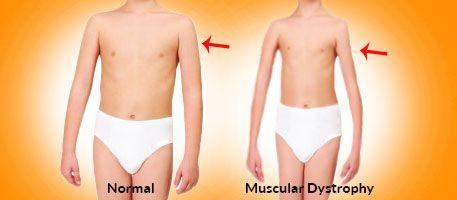 Duchenne's Muscular Dystrophy (DMD) or Muscular Dystrophy