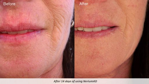 No more wrinkles.Start early to see results.