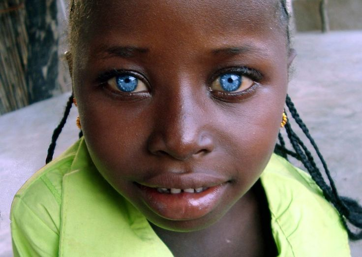 Waardenburg Syndrome 1000+ images about Waa...