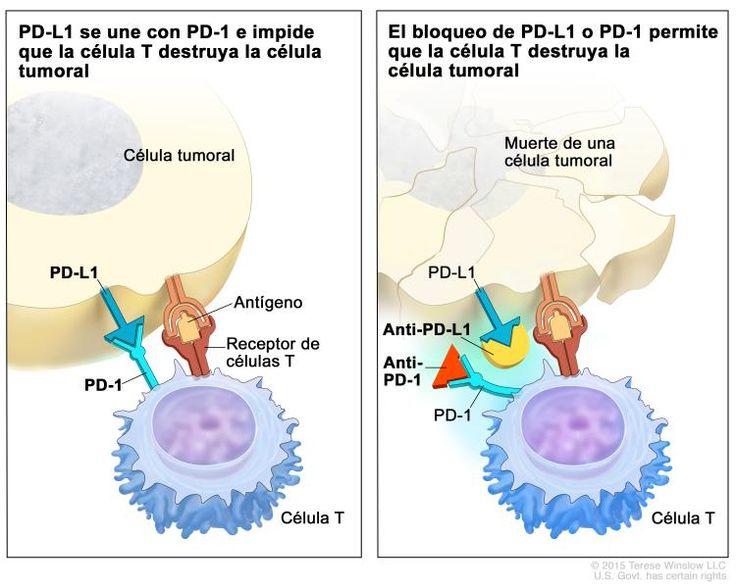 Inhibidor de puntos de control inmunitario; en el panel de la izquierda se muestra la unión de la proteína PD-L1 (en la célula tumoral) con  la proteína PD-1 (en la célula T), lo que impide que la célula T destruya la célula tumoral del cuerpo. También se muestra un antígeno de una célula tumoral y un receptor de una célula T. En el panel de la derecha, se muestran  inhibidores de puntos de control inmunitario (anti-PD-L1 y anti-PD-1) que impiden la unión de  PD-L1 con PD-1, lo que permite…
