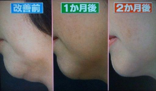 ほうれい線と顎肉改善